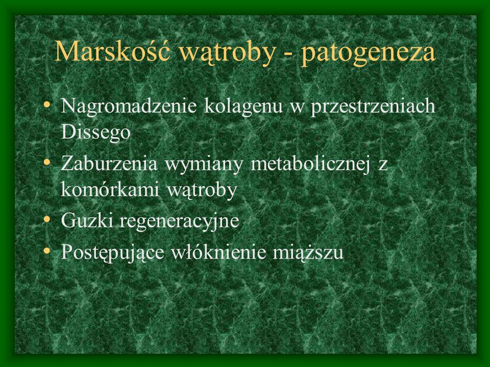 Marskość wątroby - patogeneza Nagromadzenie kolagenu w przestrzeniach Dissego Zaburzenia wymiany metabolicznej z komórkami wątroby Guzki regeneracyjne Postępujące włóknienie miąższu