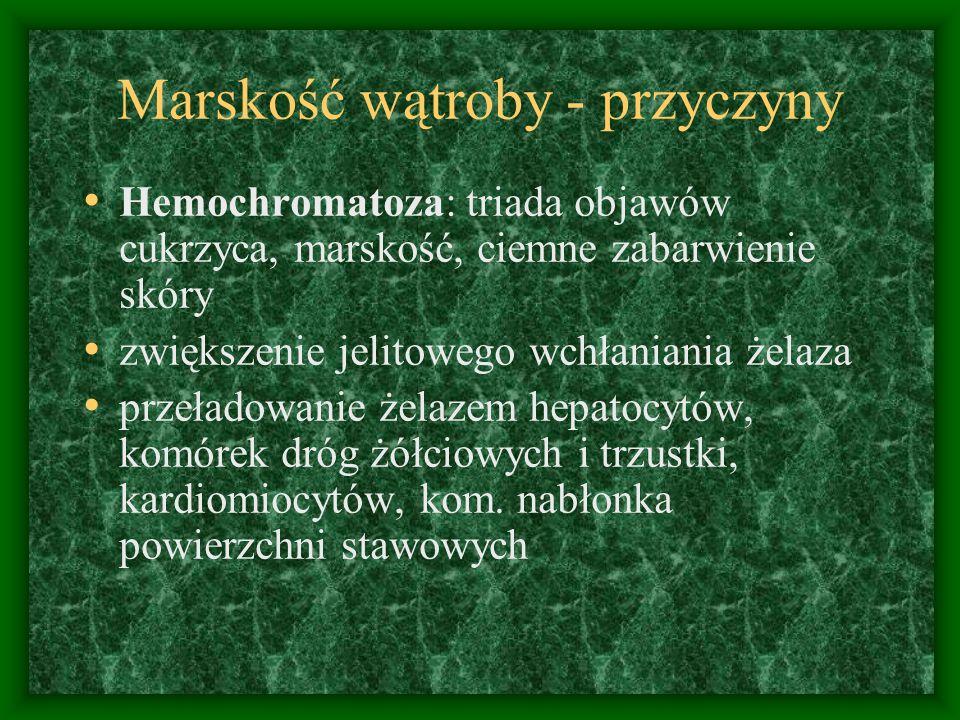 Marskość wątroby - przyczyny Hemochromatoza: triada objawów cukrzyca, marskość, ciemne zabarwienie skóry zwiększenie jelitowego wchłaniania żelaza prz