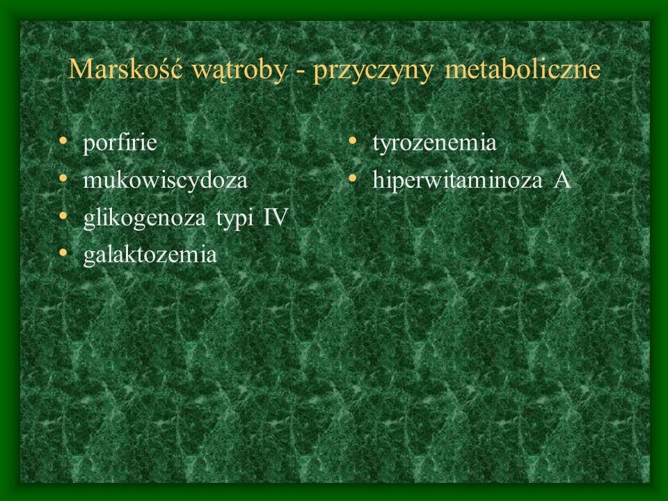 Marskość wątroby - przyczyny metaboliczne porfirie mukowiscydoza glikogenoza typi IV galaktozemia tyrozenemia hiperwitaminoza A