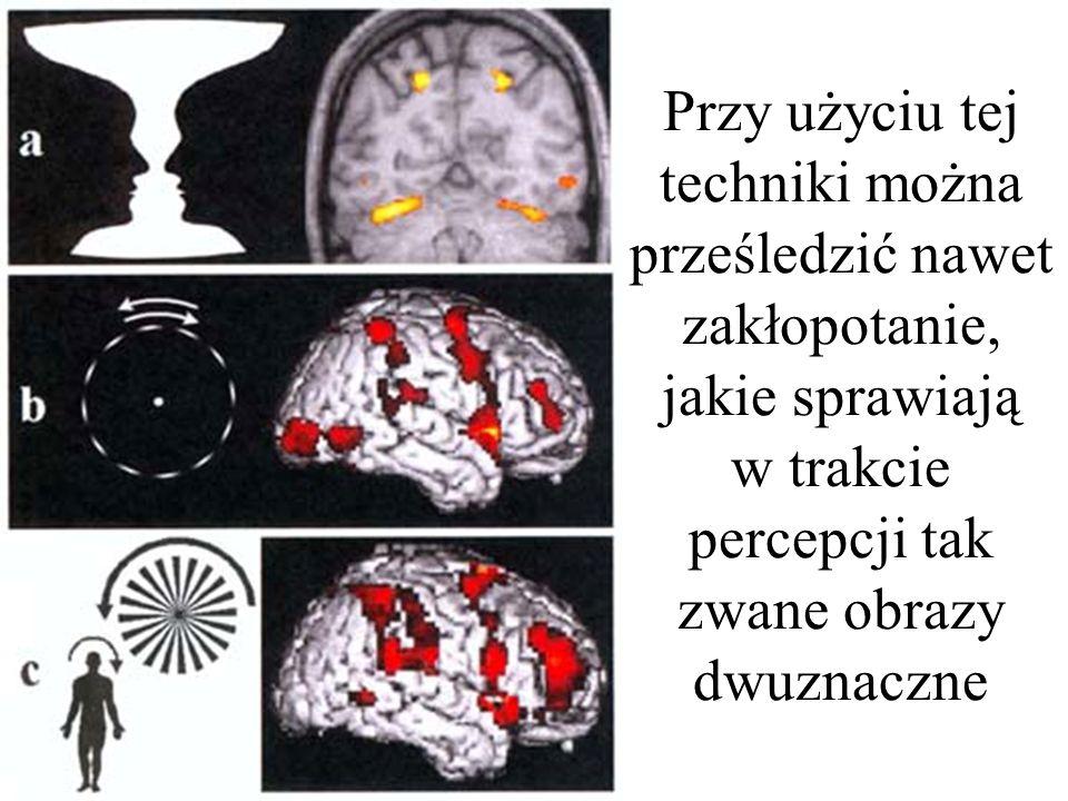 podglądanie myśli Co ciekawe – technika ta pozwala wykryć i opisać nawet tak subtelne zmiany, jakie wywołuje w mózgu np.