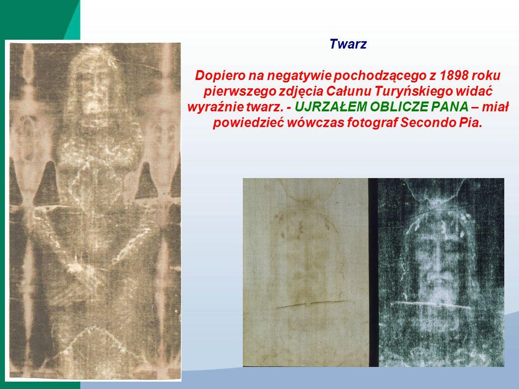 Twarz Dopiero na negatywie pochodzącego z 1898 roku pierwszego zdjęcia Całunu Turyńskiego widać wyraźnie twarz. - UJRZAŁEM OBLICZE PANA – miał powiedz