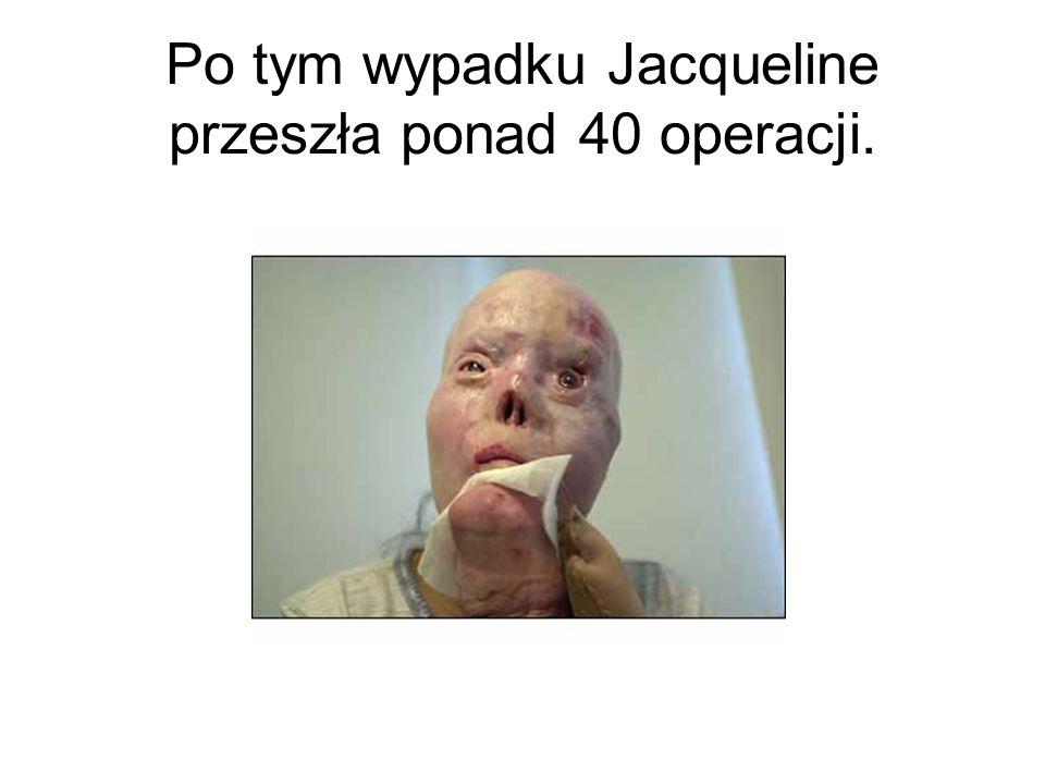 Po tym wypadku Jacqueline przeszła ponad 40 operacji.