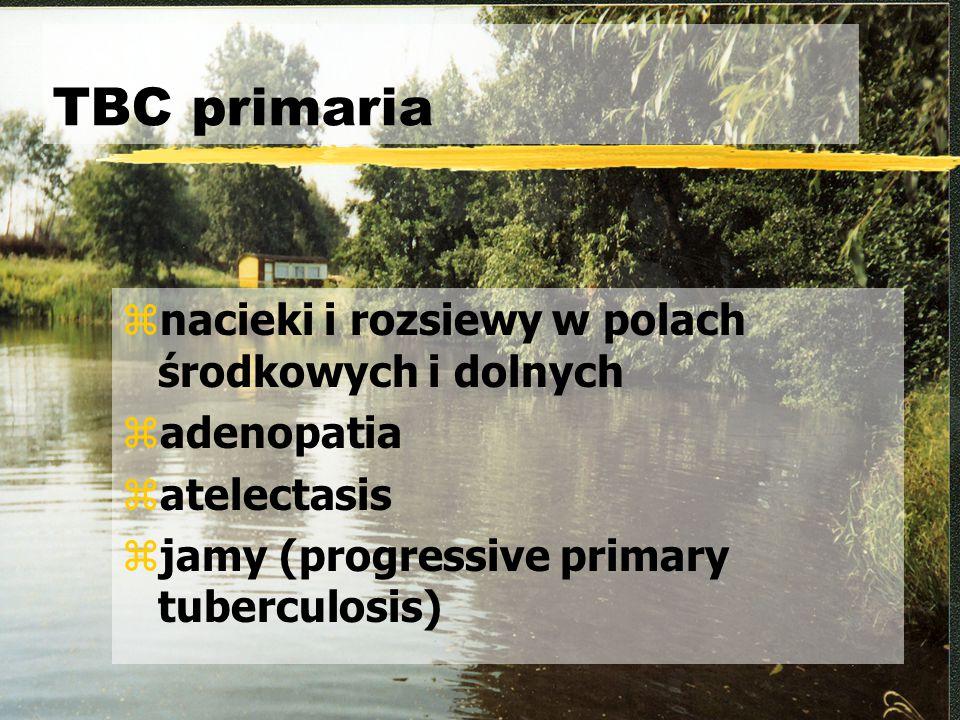 TBC primaria znacieki i rozsiewy w polach środkowych i dolnych zadenopatia zatelectasis zjamy (progressive primary tuberculosis)