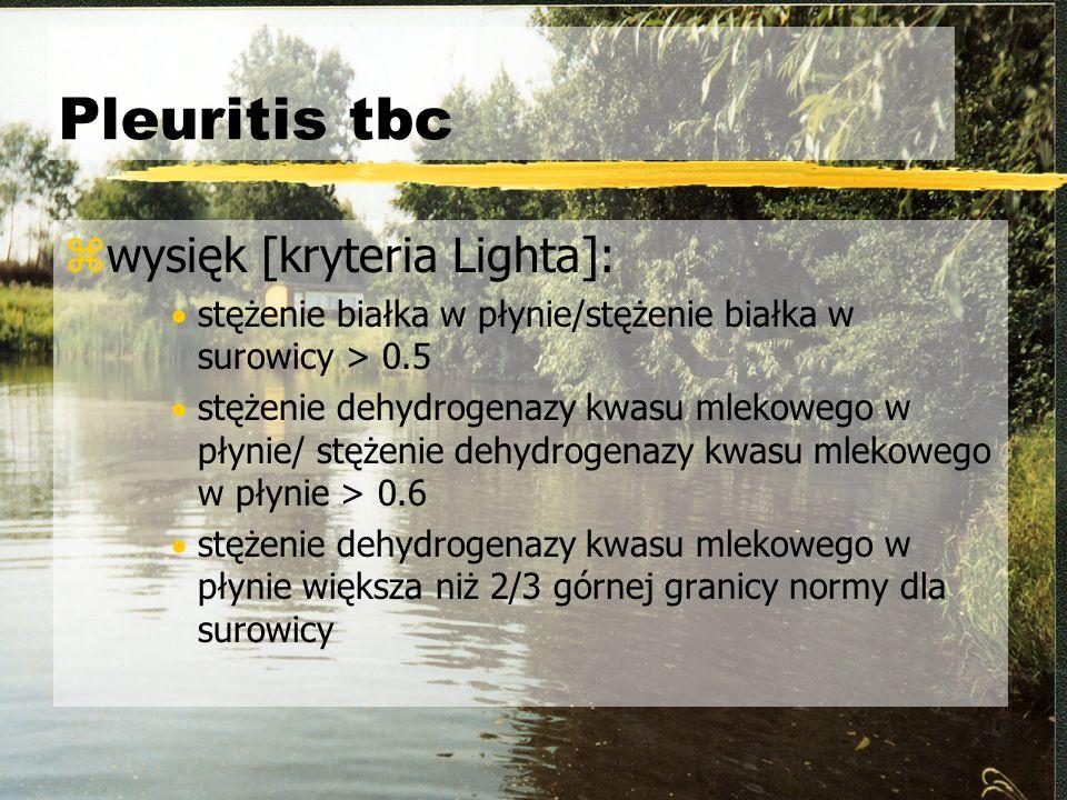Pleuritis tbc zwysięk [kryteria Lighta]:  stężenie białka w płynie/stężenie białka w surowicy > 0.5  stężenie dehydrogenazy kwasu mlekowego w płynie