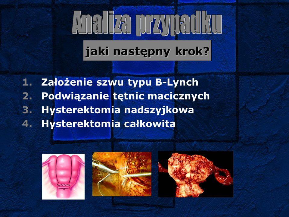 jaki następny krok? jaki następny krok? 1.Założenie szwu typu B-Lynch 2.Podwiązanie tętnic macicznych 3.Hysterektomia nadszyjkowa 4.Hysterektomia całk