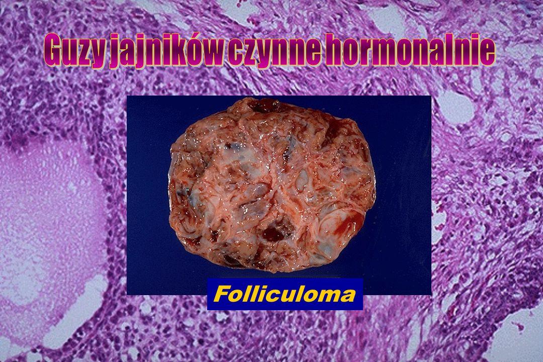 Folliculoma