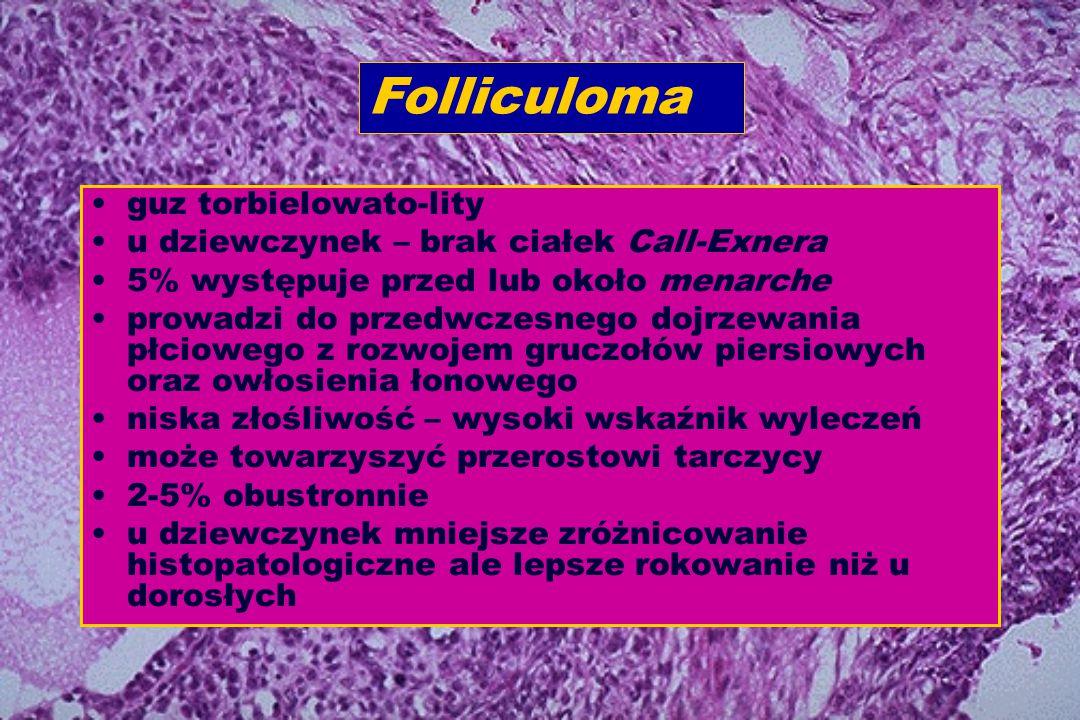guz torbielowato-lity u dziewczynek – brak ciałek Call-Exnera 5% występuje przed lub około menarche prowadzi do przedwczesnego dojrzewania płciowego z