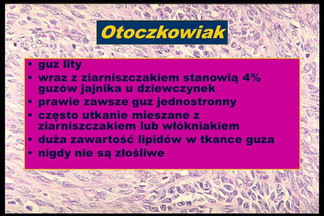 Otoczkowiak guz lity wraz z ziarniszczakiem stanowią 4% guzów jajnika u dziewczynek prawie zawsze guz jednostronny często utkanie mieszane z ziarniszc