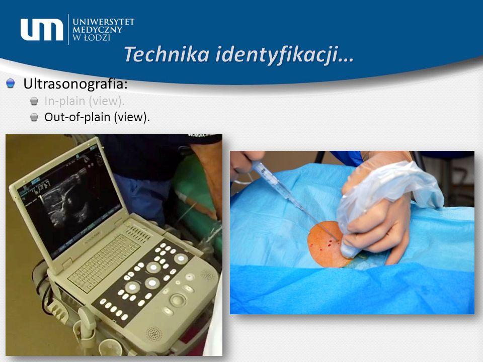 Ultrasonografia: In-plain (view). Out-of-plain (view).