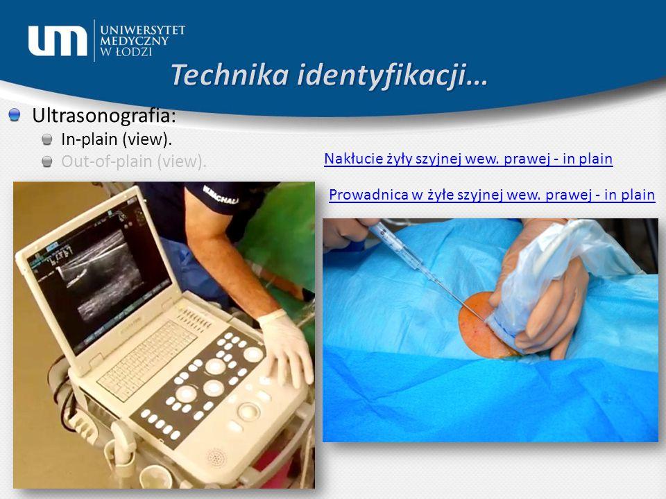 Ultrasonografia: In-plain (view). Out-of-plain (view). Nakłucie żyły szyjnej wew. prawej - in plain Prowadnica w żyłe szyjnej wew. prawej - in plain
