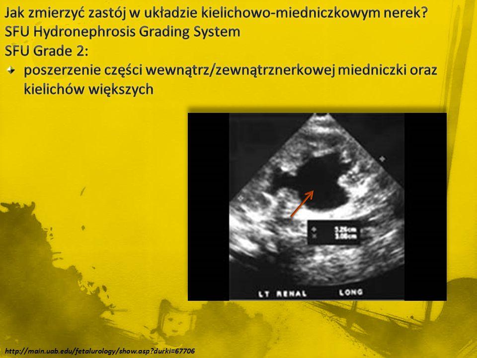 http://main.uab.edu/fetalurology/show.asp?durki=67706