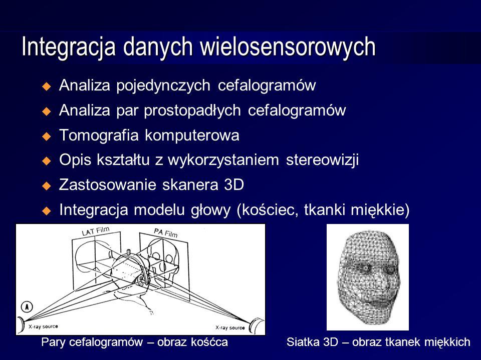Integracja danych wielosensorowych  Analiza pojedynczych cefalogramów  Analiza par prostopadłych cefalogramów  Tomografia komputerowa  Opis kształtu z wykorzystaniem stereowizji  Zastosowanie skanera 3D  Integracja modelu głowy (kościec, tkanki miękkie) Pary cefalogramów – obraz kośćcaSiatka 3D – obraz tkanek miękkich