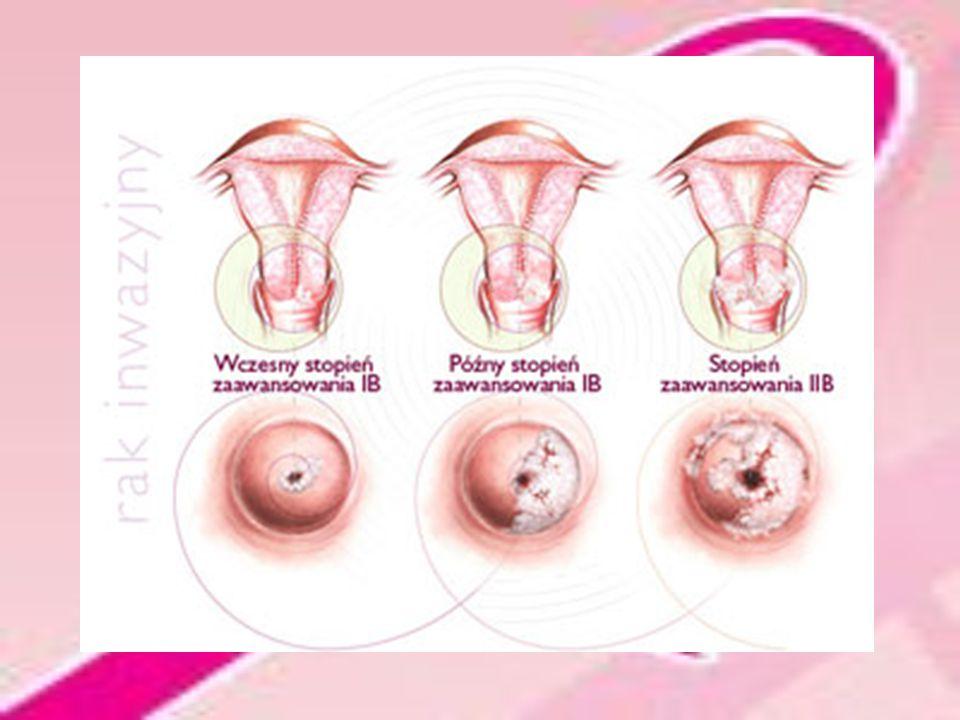 Leczenie Leczenie chirurgiczne Radioterapia Chemioterapia Leczenie hormonalne