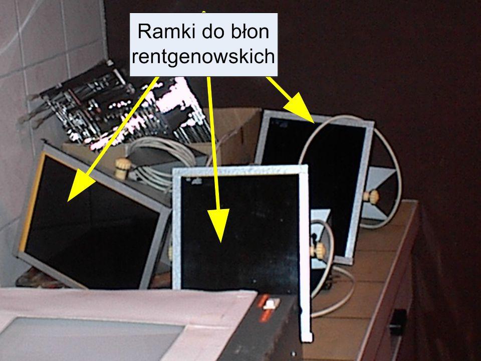 Laboratorium Federal Mogul Bimet S.A. Badania rentgenowskie Wykonywane są za pomocą aparatu rentgenowskiego Mają na celu wykrywanie pęknięć w stopie,