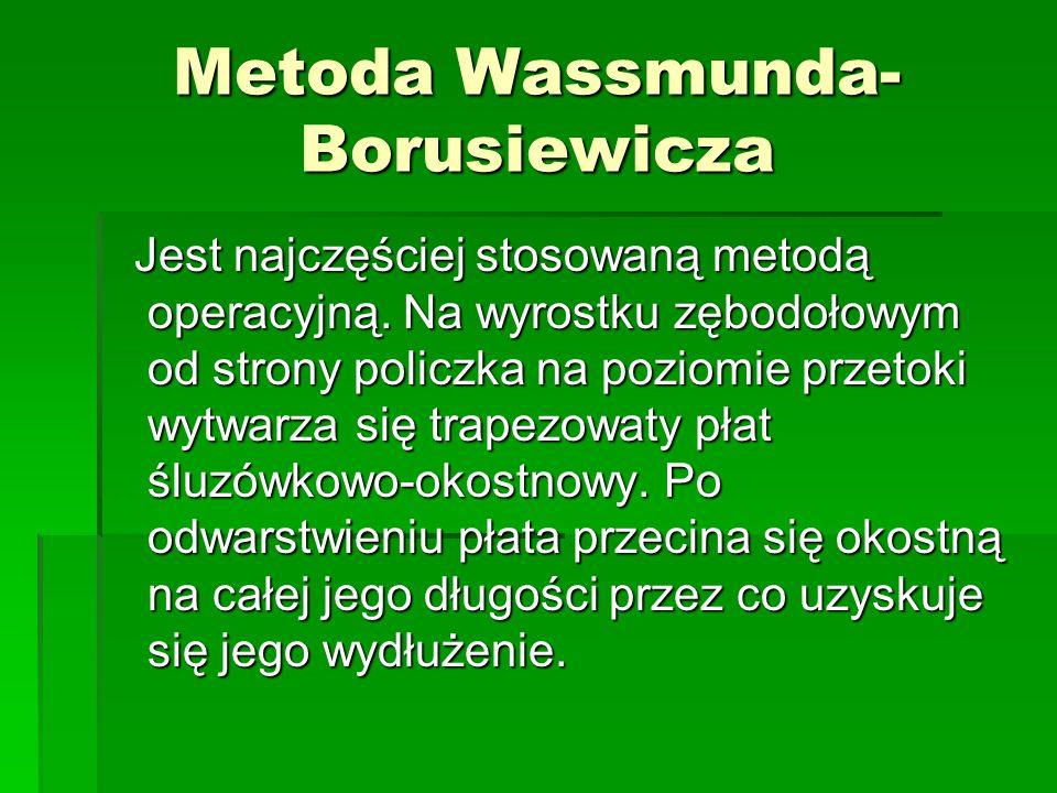 Metoda Wassmunda- Borusiewicza Jest najczęściej stosowaną metodą operacyjną. Na wyrostku zębodołowym od strony policzka na poziomie przetoki wytwarza