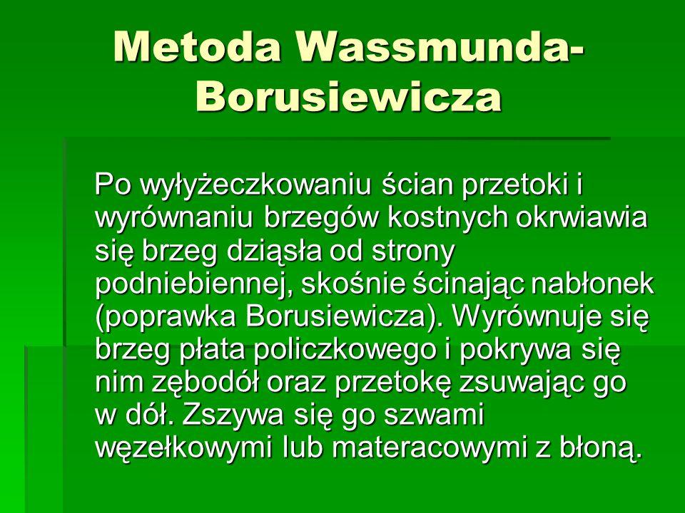 Metoda Wassmunda- Borusiewicza Po wyłyżeczkowaniu ścian przetoki i wyrównaniu brzegów kostnych okrwiawia się brzeg dziąsła od strony podniebiennej, sk