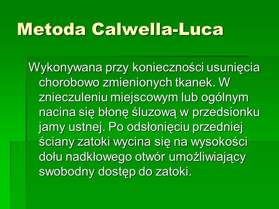 Metoda Calwella-Luca Wykonywana przy konieczności usunięcia chorobowo zmienionych tkanek. W znieczuleniu miejscowym lub ogólnym nacina się błonę śluzo