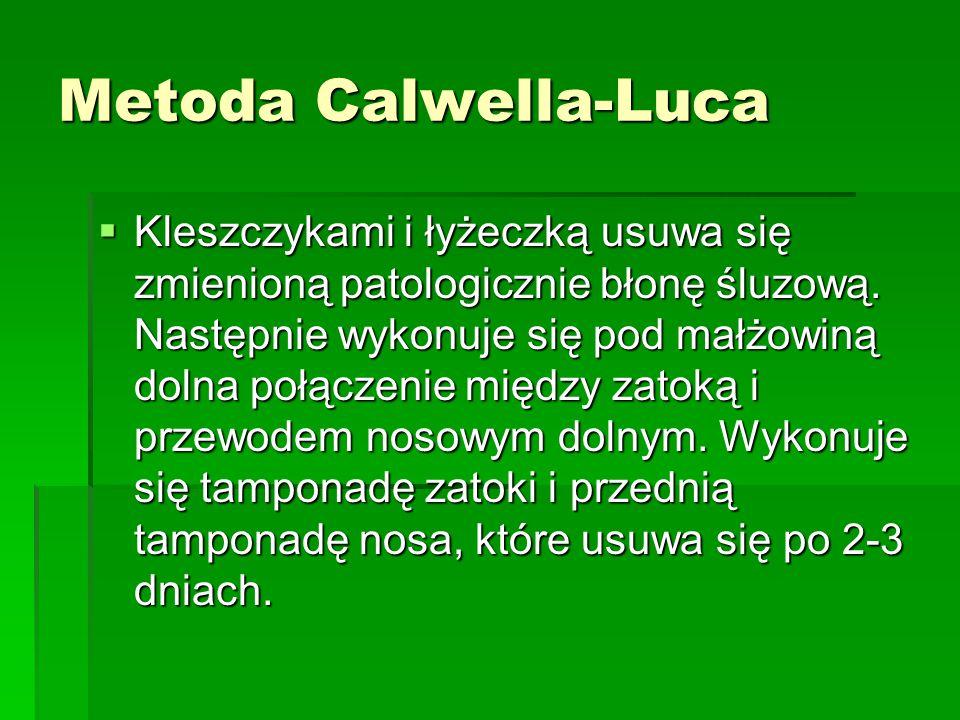 Metoda Calwella-Luca  Kleszczykami i łyżeczką usuwa się zmienioną patologicznie błonę śluzową. Następnie wykonuje się pod małżowiną dolna połączenie