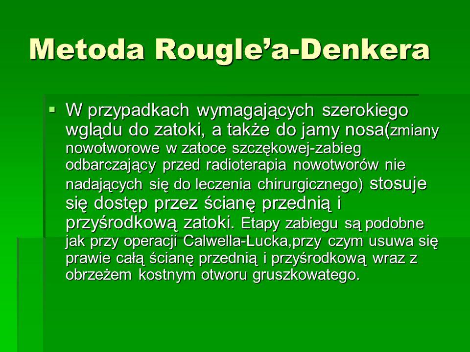 Metoda Rougle'a-Denkera  W przypadkach wymagających szerokiego wglądu do zatoki, a także do jamy nosa( zmiany nowotworowe w zatoce szczękowej-zabieg
