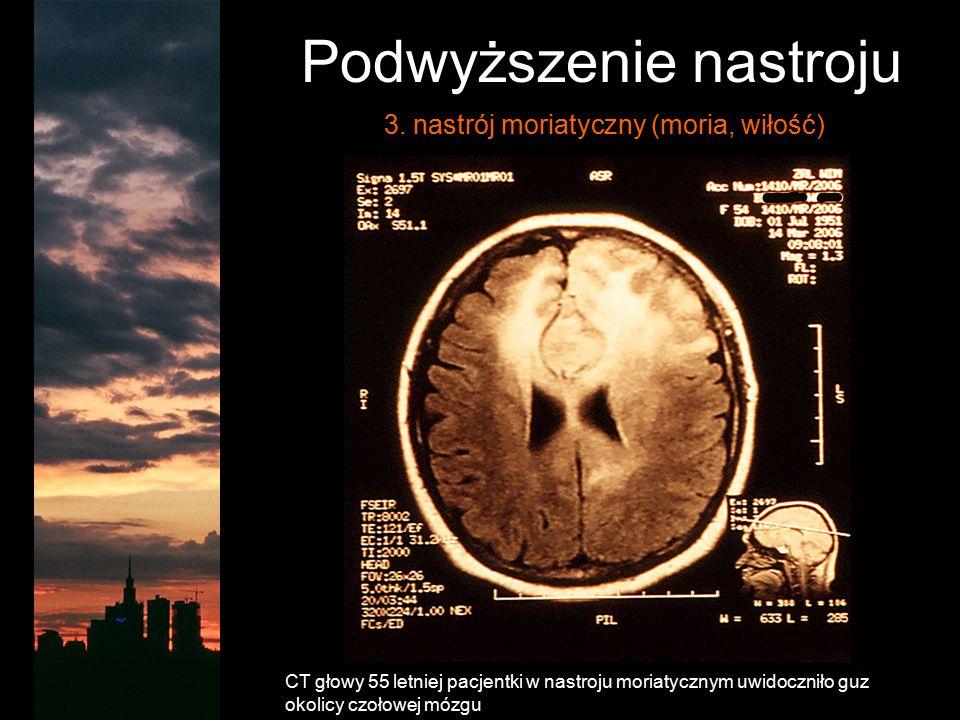 Podwyższenie nastroju 3. nastrój moriatyczny (moria, wiłość) CT głowy 55 letniej pacjentki w nastroju moriatycznym uwidoczniło guz okolicy czołowej mó