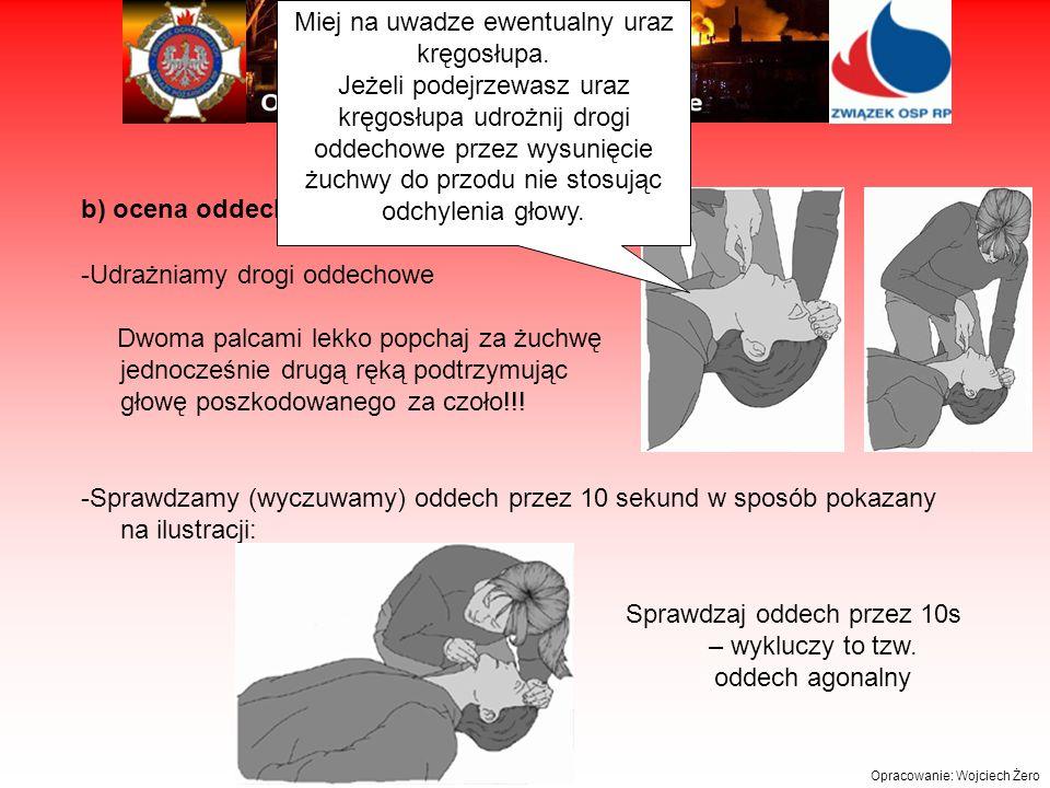 Opracowanie: Wojciech Żero b) ocena oddechu -Udrażniamy drogi oddechowe Dwoma palcami lekko popchaj za żuchwę jednocześnie drugą ręką podtrzymując głowę poszkodowanego za czoło!!.
