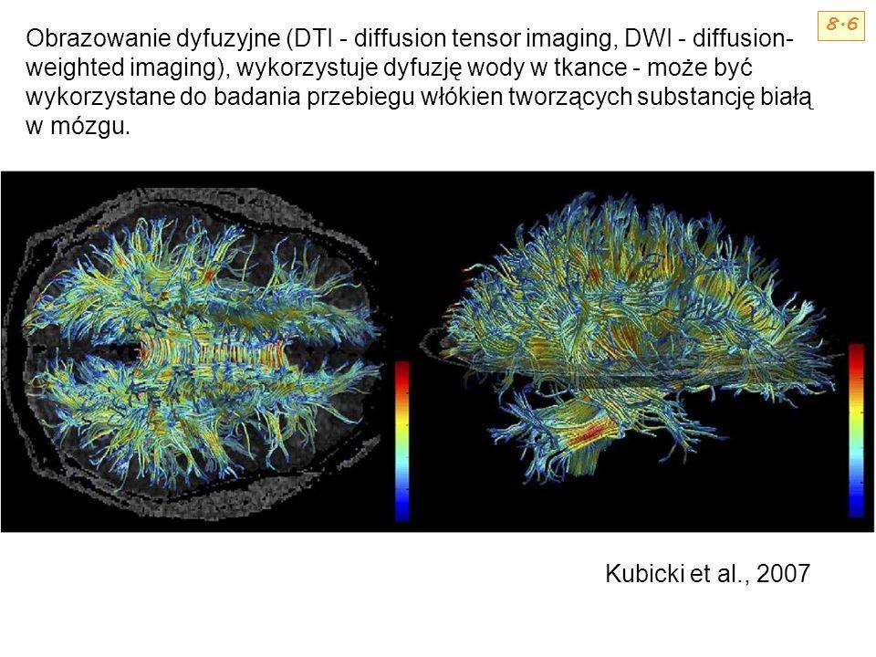 Obrazowanie dyfuzyjne (DTI - diffusion tensor imaging, DWI - diffusion- weighted imaging), wykorzystuje dyfuzję wody w tkance - może być wykorzystane