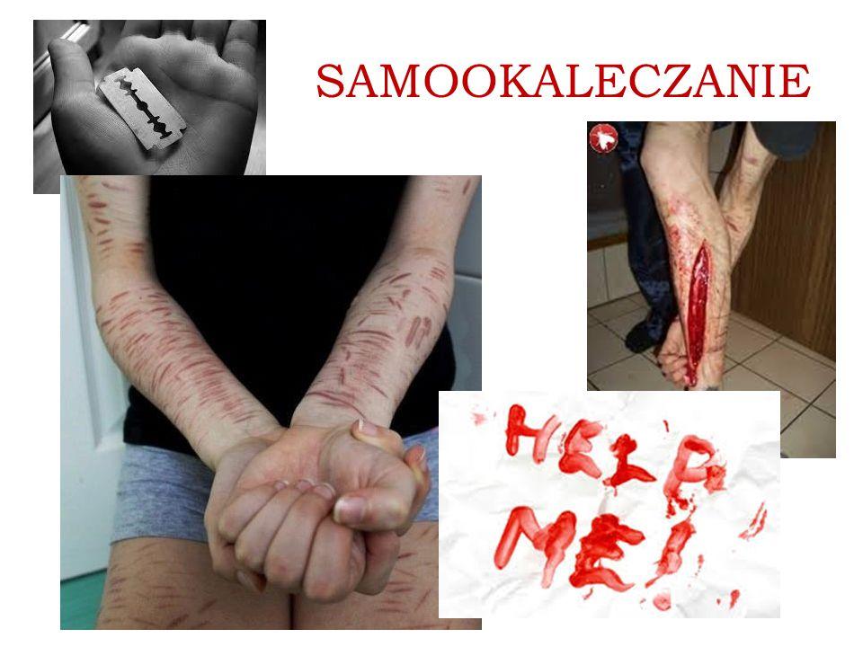SAMOOKALECZANIE