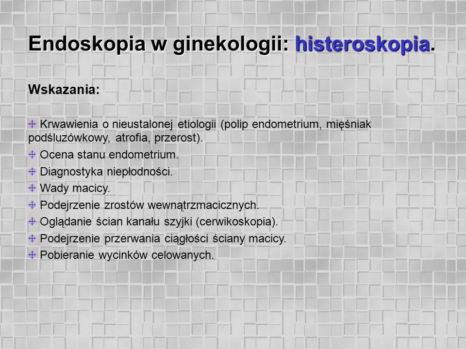 Endoskopia w ginekologii: histeroskopia. Wskazania: Krwawienia o nieustalonej etiologii (polip endometrium, mięśniak podśluzówkowy, atrofia, przerost)