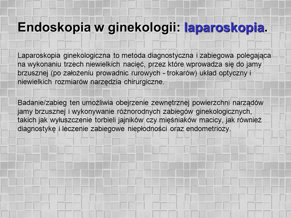 Endoskopia w ginekologii: laparoskopia. Laparoskopia ginekologiczna to metoda diagnostyczna i zabiegowa polegająca na wykonaniu trzech niewielkich nac