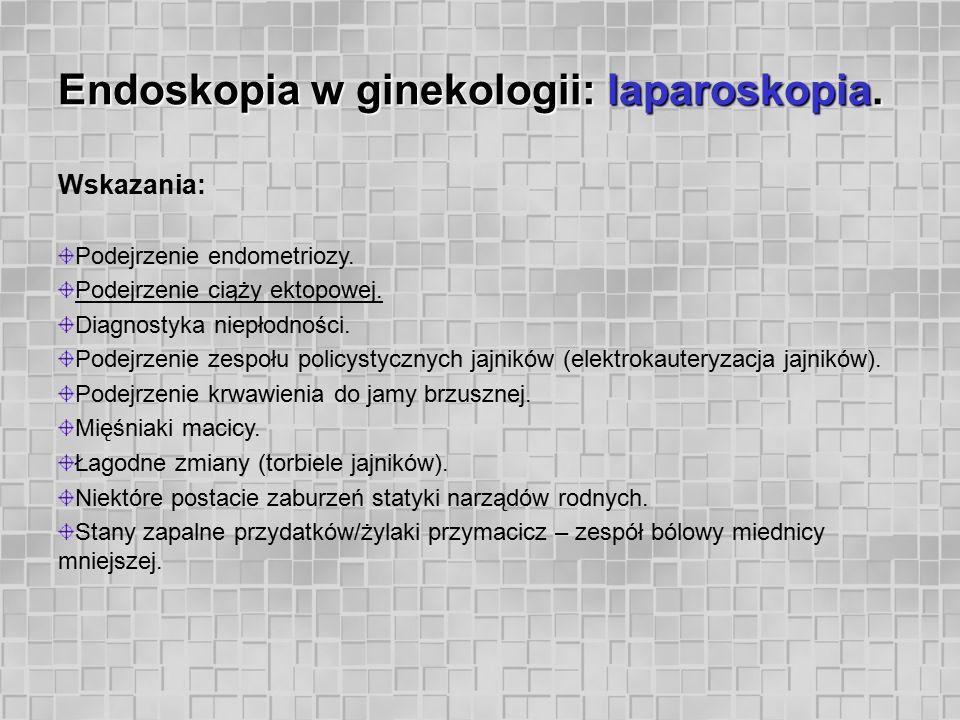 Endoskopia w ginekologii: laparoskopia. Wskazania: Podejrzenie endometriozy. Podejrzenie ciąży ektopowej. Diagnostyka niepłodności. Podejrzenie zespoł