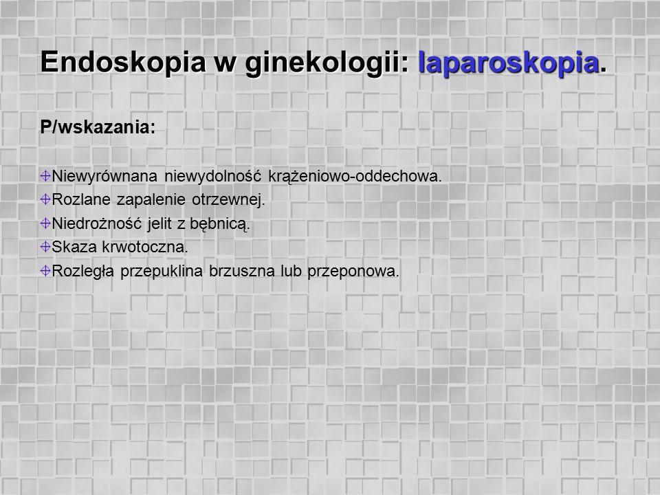Endoskopia w ginekologii: laparoskopia. P/wskazania: Niewyrównana niewydolność krążeniowo-oddechowa. Rozlane zapalenie otrzewnej. Niedrożność jelit z