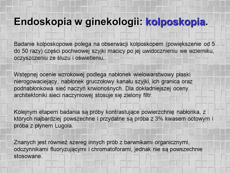 Endoskopia w ginekologii: kolposkopia. Badanie kolposkopowe polega na obserwacji kolposkopem (powiększenie od 5 do 50 razy) części pochwowej szyjki ma