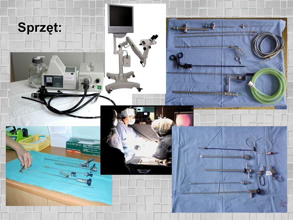 Endoskopia w ginekologii: histeroskopia. Polip endometrium - USG