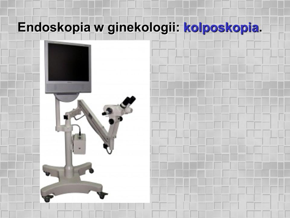 Endoskopia w ginekologii: kolposkopia.