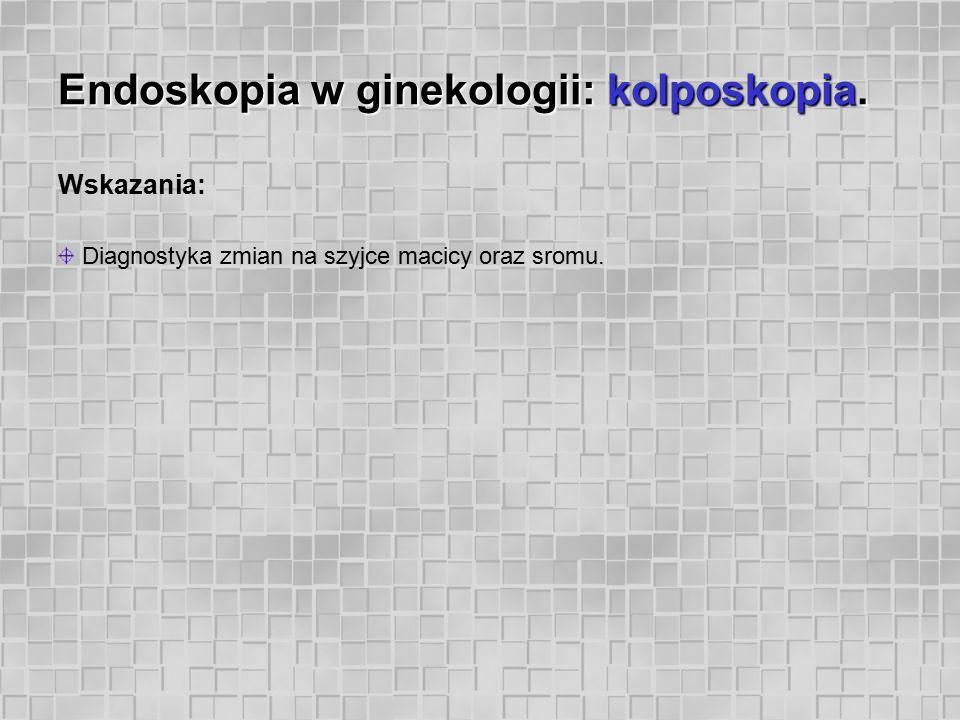 Endoskopia w ginekologii: kolposkopia. Wskazania: Diagnostyka zmian na szyjce macicy oraz sromu.