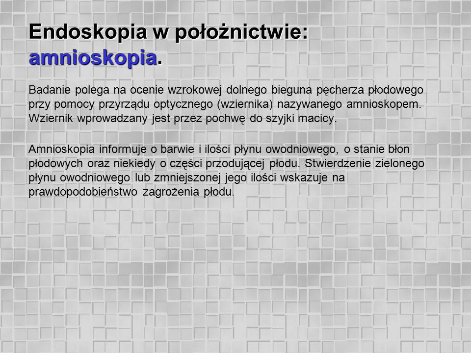 Endoskopia w położnictwie: amnioskopia. Badanie polega na ocenie wzrokowej dolnego bieguna pęcherza płodowego przy pomocy przyrządu optycznego (wziern