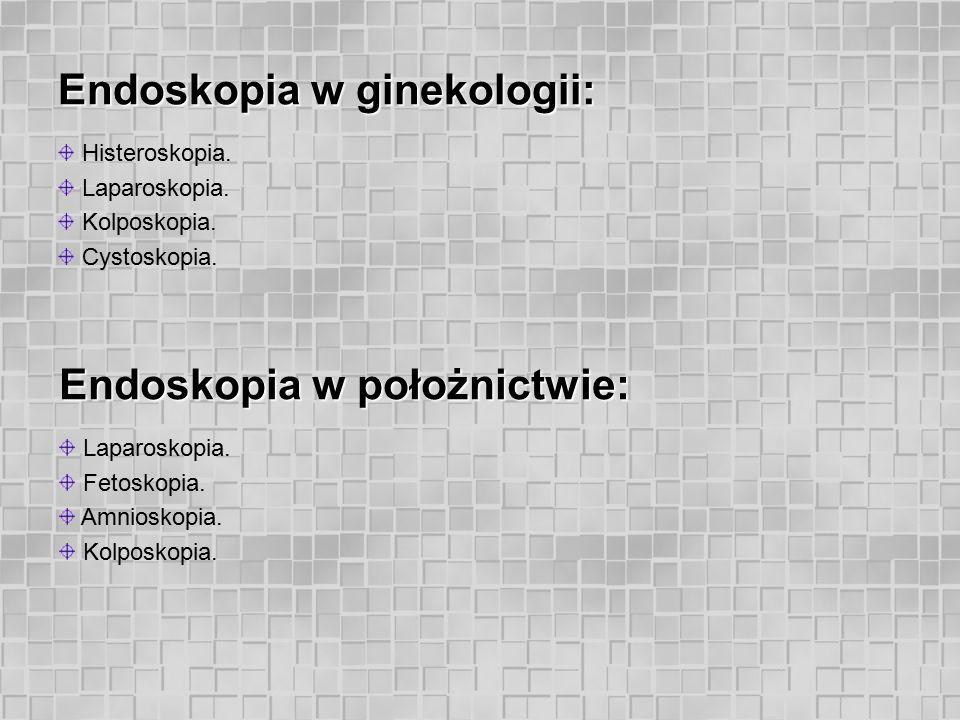 Endoskopia w ginekologii: histeroskopia. Polip endometrium - histeroskopia