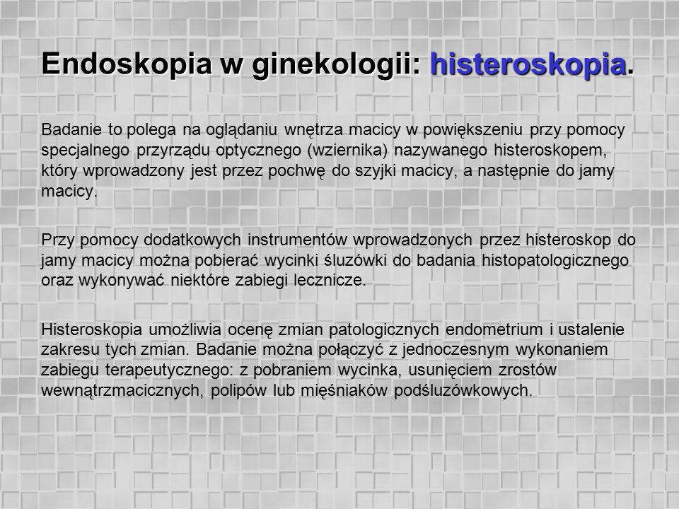 Endoskopia w ginekologii: histeroskopia. Badanie to polega na oglądaniu wnętrza macicy w powiększeniu przy pomocy specjalnego przyrządu optycznego (wz