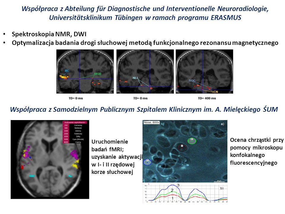 Współpraca z Abteilung für Diagnostische und Interventionelle Neuroradiologie, Universitätsklinikum Tübingen w ramach programu ERASMUS Spektroskopia N