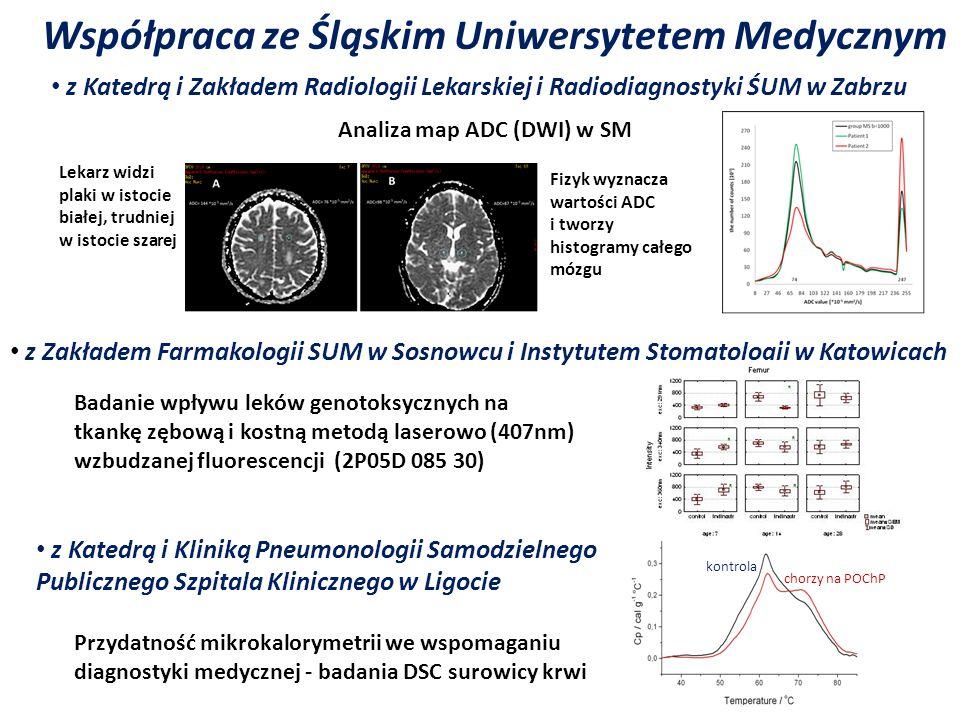 Współpraca ze Śląskim Uniwersytetem Medycznym chorzy na POChP Analiza map ADC (DWI) w SM z Zakładem Farmakologii SUM w Sosnowcu i Instytutem Stomatolo