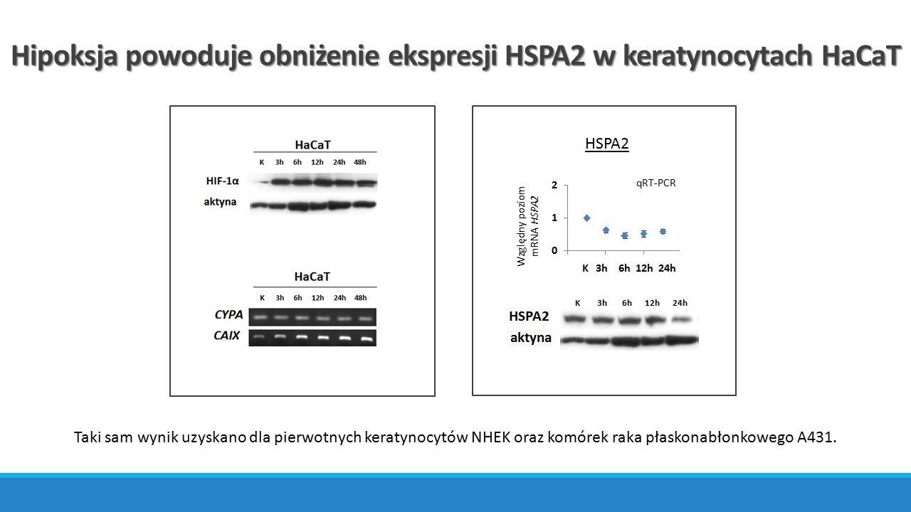 ChIP-qPCR HIF-1α wiąże się do sekwencji HRE w promotorze genu HSPA2 Lokalizacja starterów k – kontrola h3 – hipoksja 3h h3e – hipoksja 3h + echinomycyna 160 nM h6 – hipoksja 6h h6e – hipoksja 6h + echinomycyna 160 nM