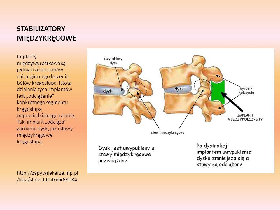 STABILIZATORY MIĘDZYKRĘGOWE Implanty międzywyrostkowe są jednym ze sposobów chirurgicznego leczenia bólów kręgosłupa. Istotą działania tych implantów