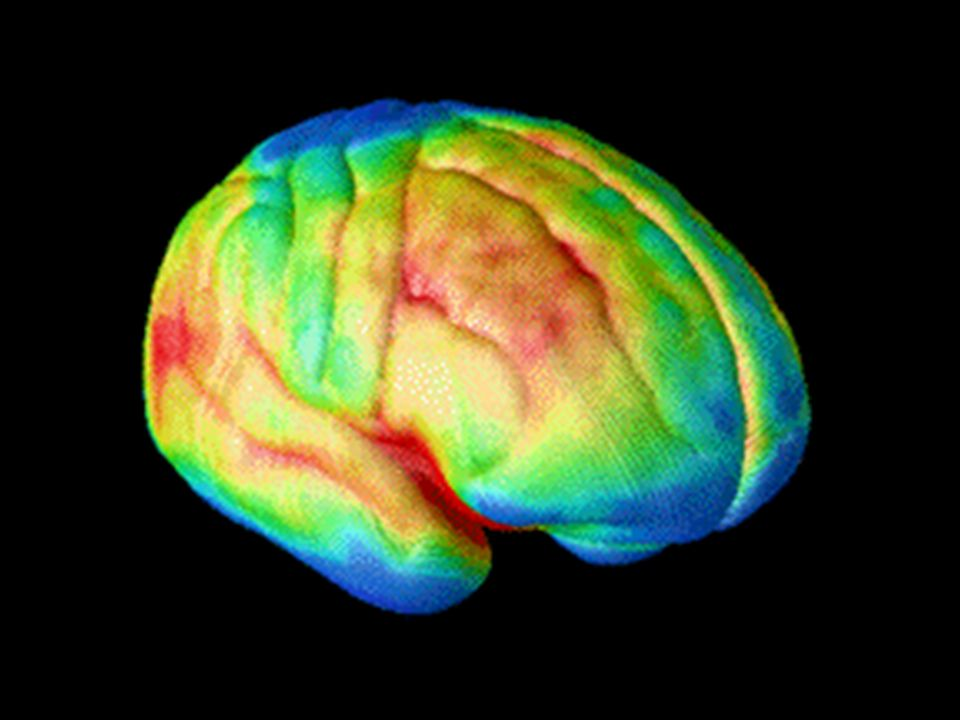 The decade-long magnetic resonance imaging (MRI) study of normal brain development, from ages 4 to 21, by researchers at NIH's National Institute of M