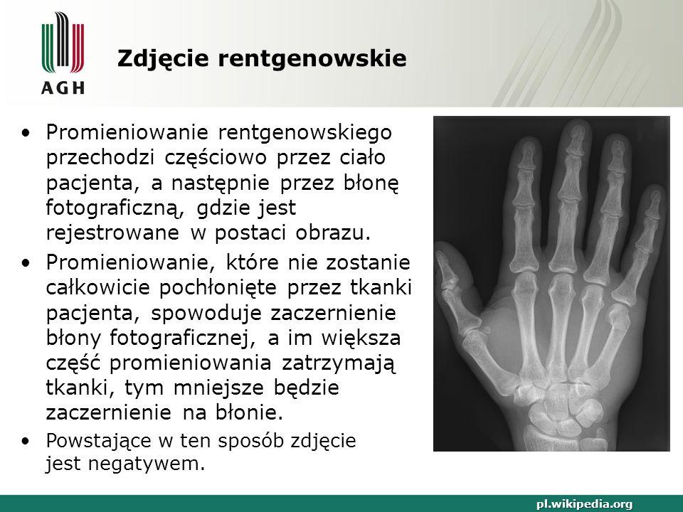 Zdjęcie rentgenowskie pl.wikipedia.org Promieniowanie rentgenowskiego przechodzi częściowo przez ciało pacjenta, a następnie przez błonę fotograficzną