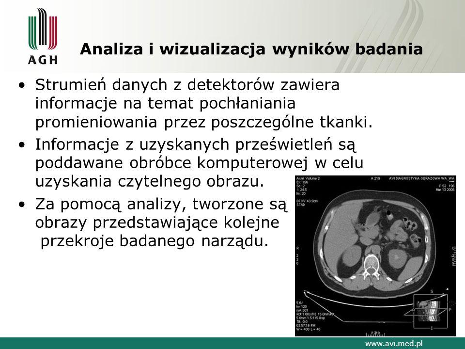 Analiza i wizualizacja wyników badania Strumień danych z detektorów zawiera informacje na temat pochłaniania promieniowania przez poszczególne tkanki.