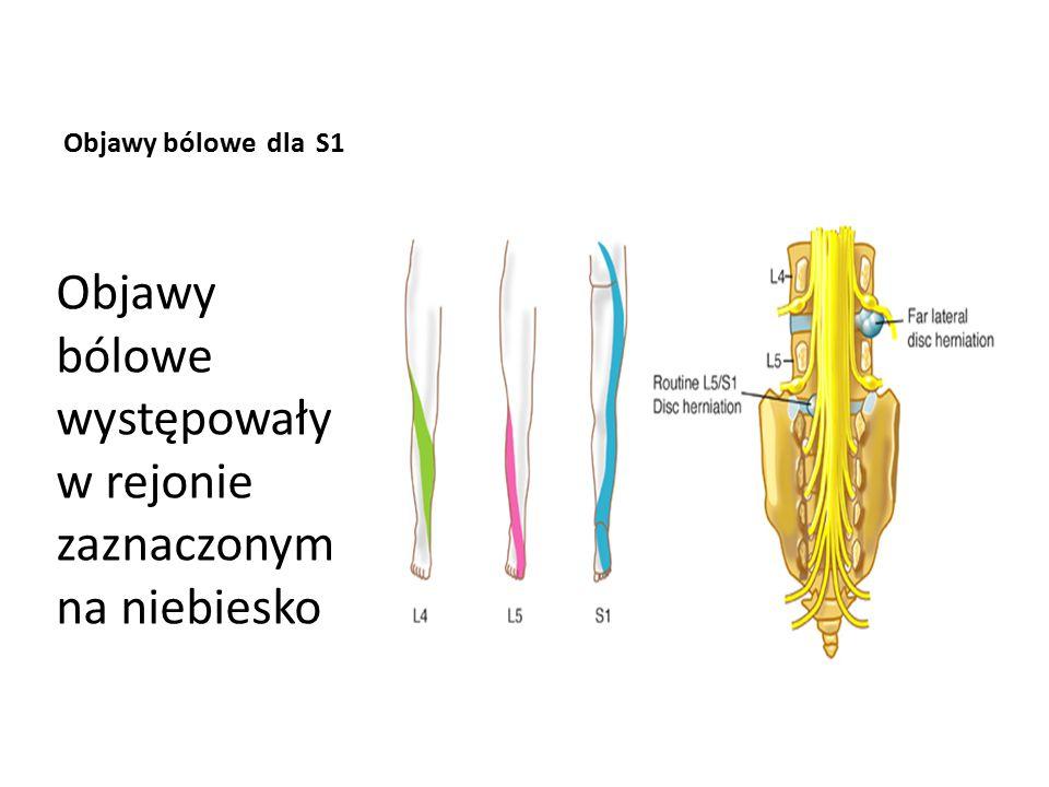Objawy bólowe dla S1 Objawy bólowe występowały w rejonie zaznaczonym na niebiesko