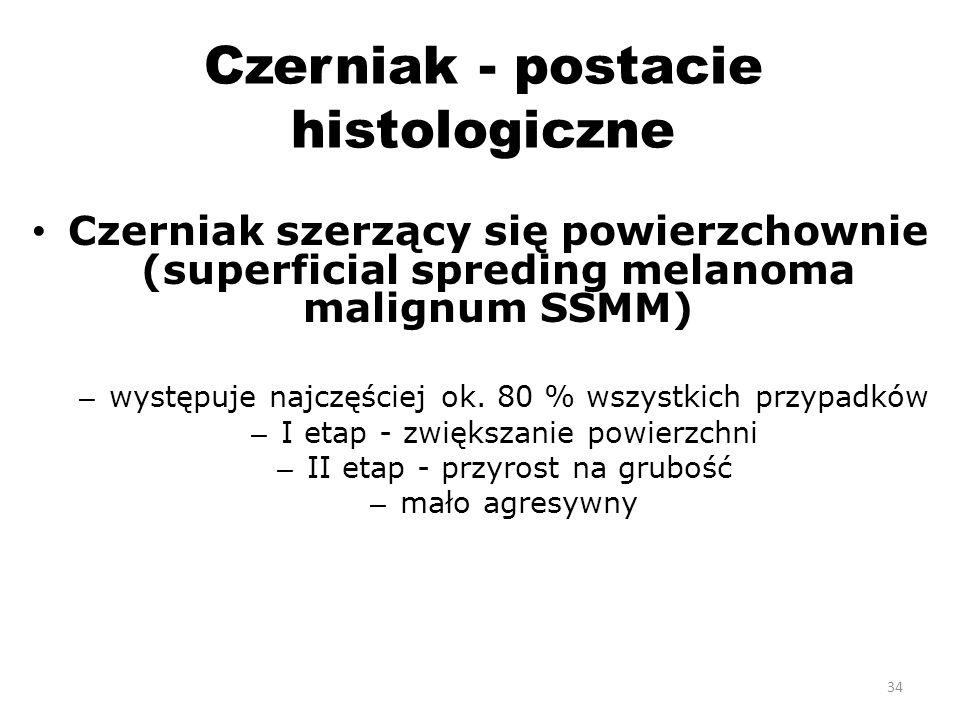 Czerniak - postacie histologiczne Czerniak szerzący się powierzchownie (superficial spreding melanoma malignum SSMM) – występuje najczęściej ok.