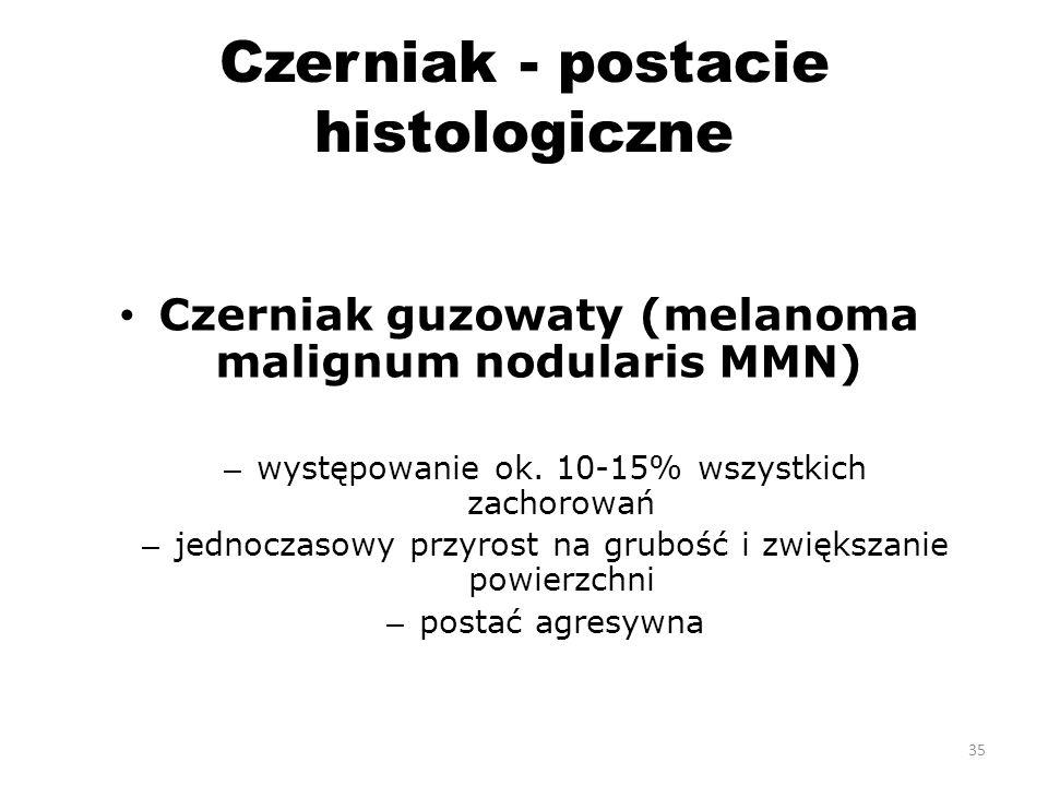 Czerniak - postacie histologiczne Czerniak guzowaty (melanoma malignum nodularis MMN) – występowanie ok.