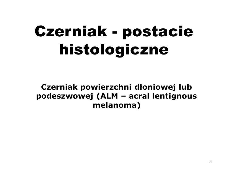 38 Czerniak - postacie histologiczne Czerniak powierzchni dłoniowej lub podeszwowej (ALM – acral lentignous melanoma)