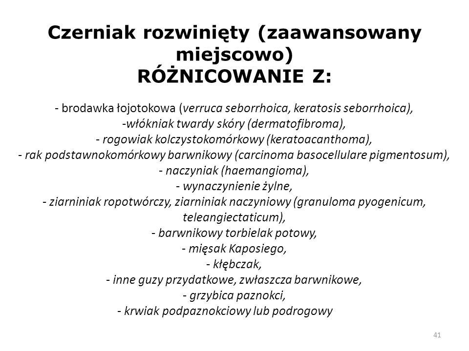 41 Czerniak rozwinięty (zaawansowany miejscowo) RÓŻNICOWANIE Z: - brodawka łojotokowa (verruca seborrhoica, keratosis seborrhoica), -włókniak twardy skóry (dermatofibroma), - rogowiak kolczystokomórkowy (keratoacanthoma), - rak podstawnokomórkowy barwnikowy (carcinoma basocellulare pigmentosum), - naczyniak (haemangioma), - wynaczynienie żylne, - ziarniniak ropotwórczy, ziarniniak naczyniowy (granuloma pyogenicum, teleangiectaticum), - barwnikowy torbielak potowy, - mięsak Kaposiego, - kłębczak, - inne guzy przydatkowe, zwłaszcza barwnikowe, - grzybica paznokci, - krwiak podpaznokciowy lub podrogowy